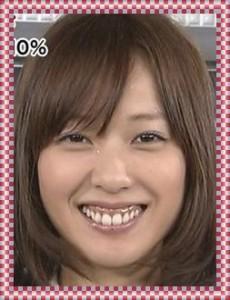戸田恵梨香が歯茎を整形して治した?手術かボトックスか検証 ...